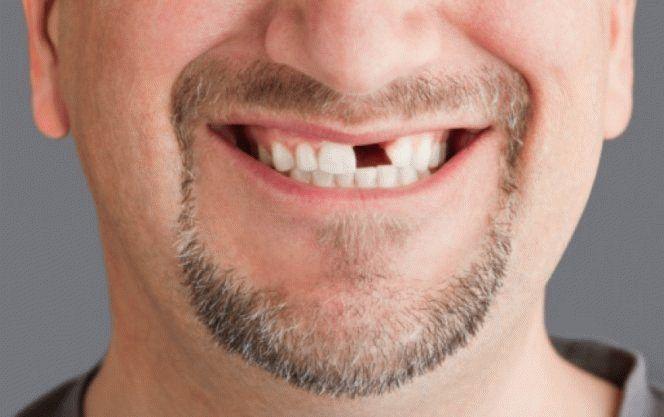 До чого сниться відколотий зуб: сонник, зуб відколовся без крові