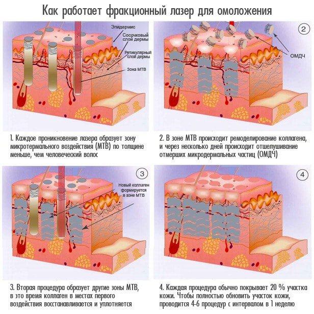 Як діє фракційний лазер для омолодження
