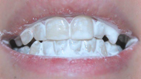 Як робити аплікації з зубного порошку
