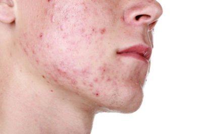 Як позбутися від болючих прищів на обличчі