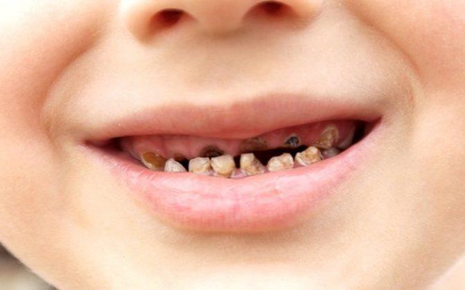 Як позбутися від чорного нальоту на зубах у дорослих і дітей