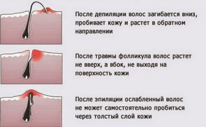 Як позбутися від роздратування після гоління на ногах