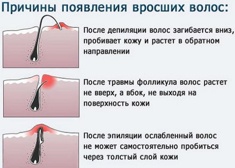 Як позбутися від врослого волосся