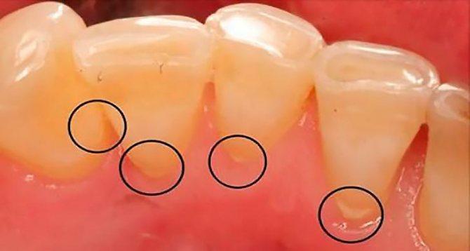 Як позбутися від зубного каменю