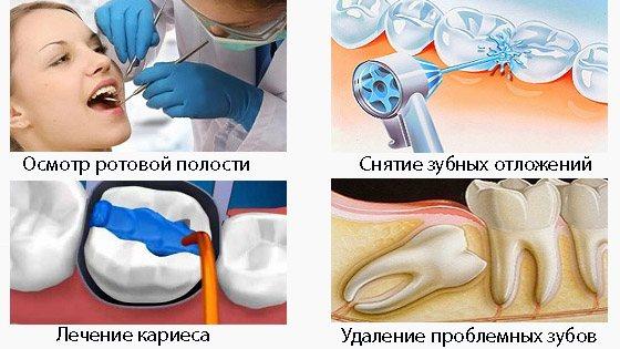 Як лікувати виразковий стоматит?