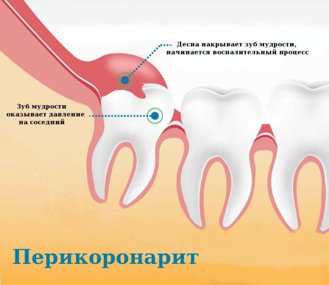 Як лікується перикороніт. Ускладнення при прорізуванні зуба мудрості