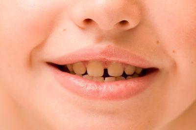як очистити зуби дитині від чорного нальоту