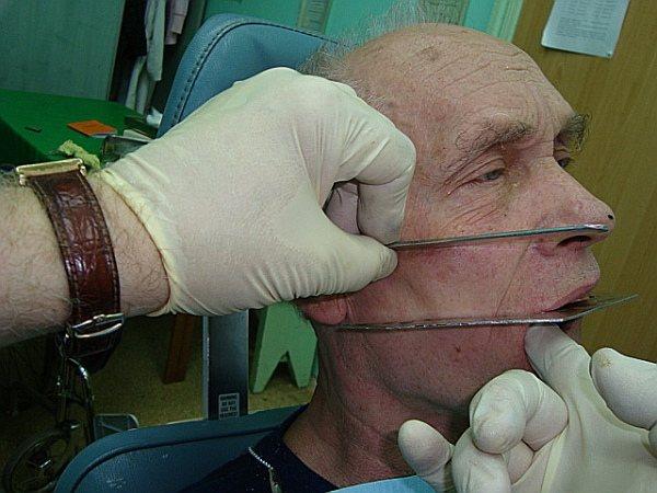 Як визначається центральна оклюзія при частковій відсутності зубів