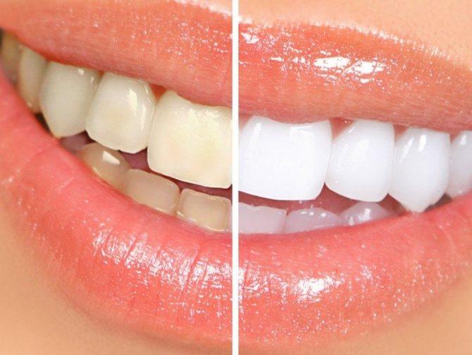 Як відбілити зуби в домашніх умовах без шкоди для емалі?