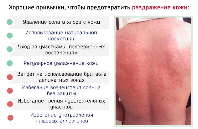 Як запобігти роздратування шкіри