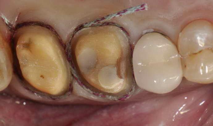 Як відбувається препарування зуба
