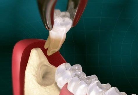 Як відбувається видалення зуба мудрості