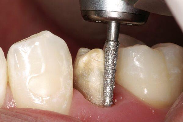 Як проводиться обточування зуба під Металопластмасова коронку