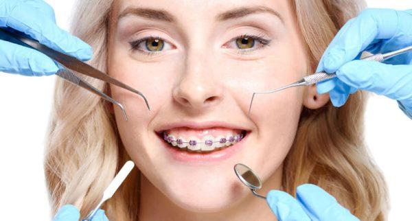 Як знімають брекети з зубів відео