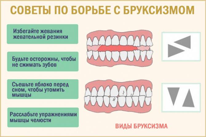 Як впоратися з нічним скреготом зубами
