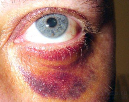 Як видалити синяк під оком від удару в домашніх умовах швидко