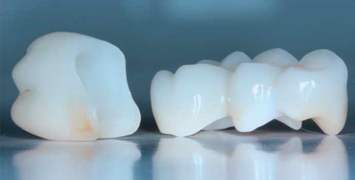 Як встановлюють коронки на зуби: етапи і особливості проведення процедури