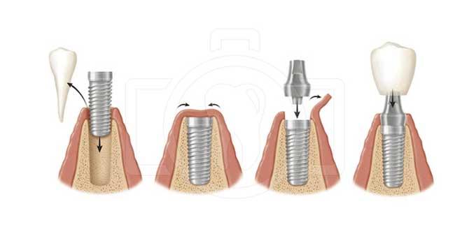 як встановлюються імпланти зубів