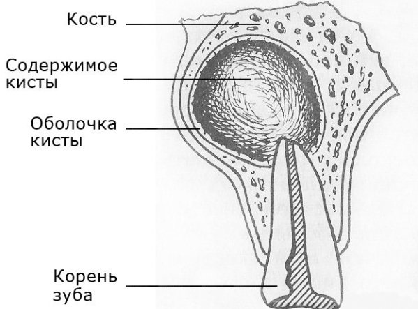 Як виглядає радикулярная кіста зуба