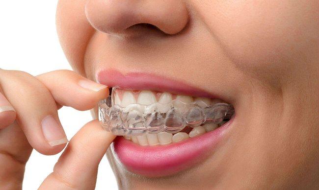 Як вирівняти зуби без брекетів?