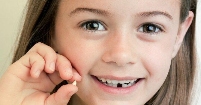Як вирвати молочний зуб