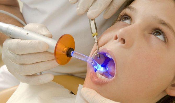 яка пломба краще для зубів