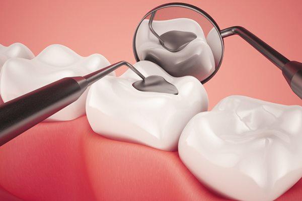 яка пломба краще на жувальний зуб