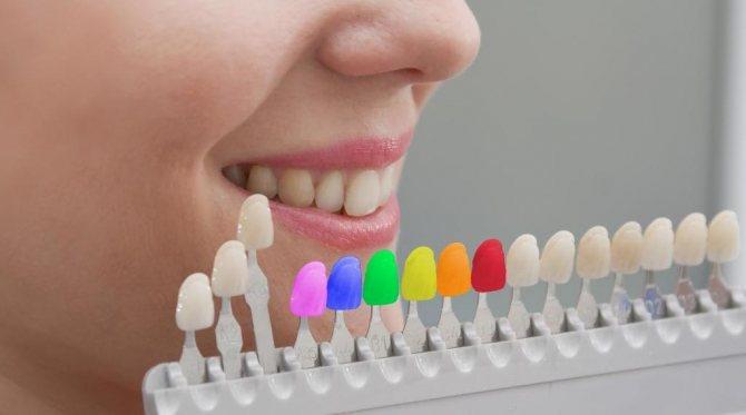 які пломби краще ставити на жувальні зуби
