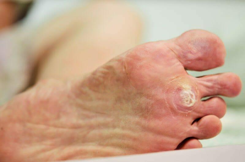 Які причини появи шіпіци на нозі