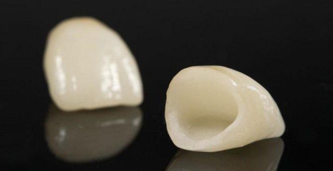 які зубні пломби краще