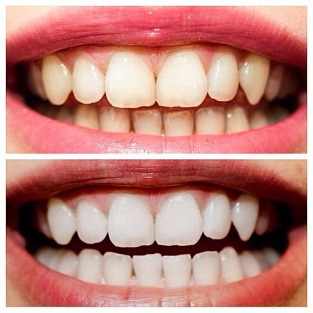 Який спосіб відбілювання зубів самий щадний і ефективний? Шукаємо найбезпечніший метод