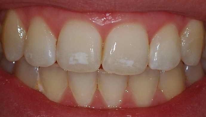 Які ознаки ерозії емалі зуба