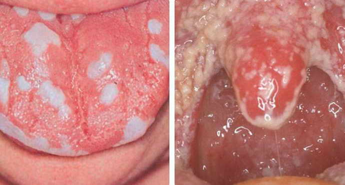 Кандидозная форма стоматиту