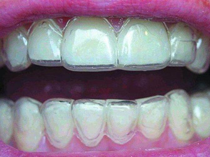 Капи для вирівнювання зубів