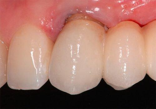 Карієс кореня зуба - діагностика