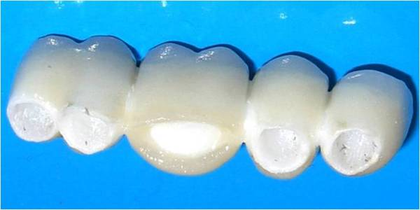 Керамічні коронки на передні зуби ціна