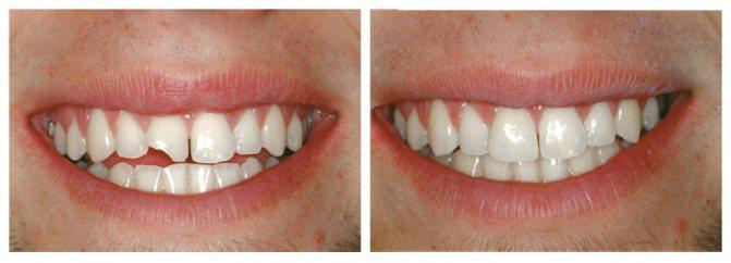 керамічні вініри на зуби