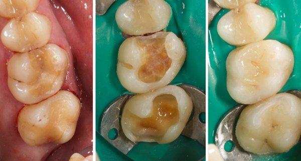 Керамічні вкладки на зуби. Що це таке, фото, ціна, відгуки лікарів