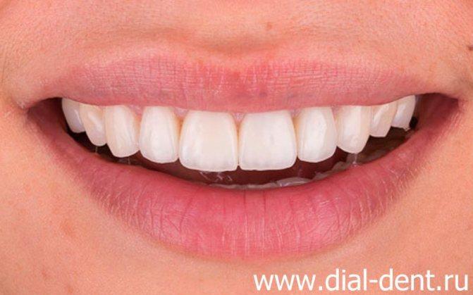 керамічні зубні коронки
