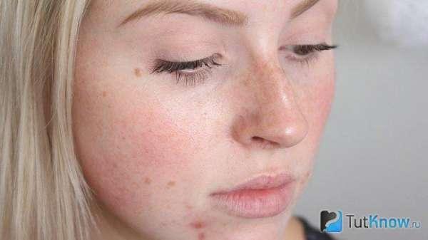 KeyNews.ru - Грейпфрут для шкіри обличчя - рецепти масок, спреїв, лосьйонів, особливості використання - Краса і стиль