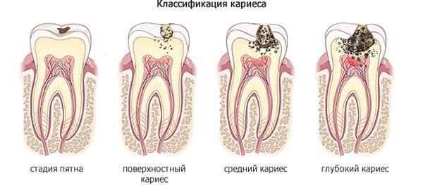 класифікація карієсу