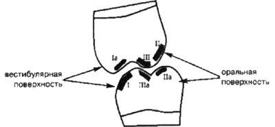 Класифікація передчасних контактів (супра- контактів) зубів по Jankelson