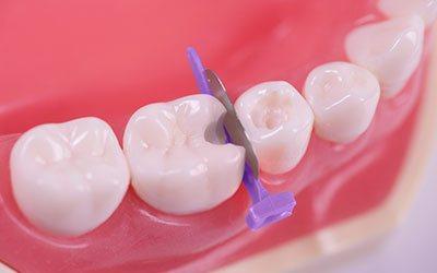 Клини в міжзубних проміжках - Стоматологія Лінія Посмішки