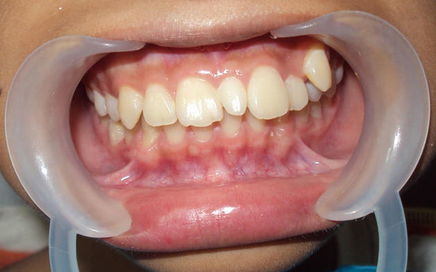 ікла зуби