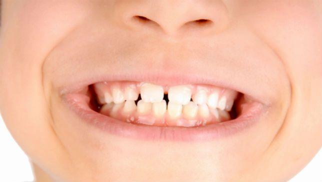 коли прорізаються корінні зуби