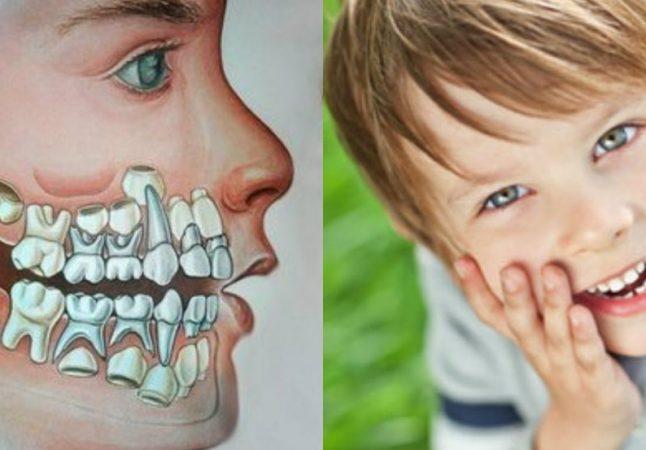 Коли чекати перших втрат? Молочні зуби у дітей - схема випадання
