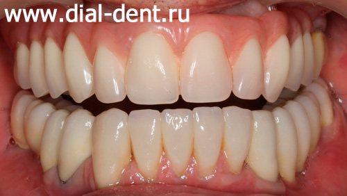 комплексне протезування зубів в Диал-Дент