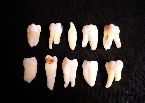 коріння зубів