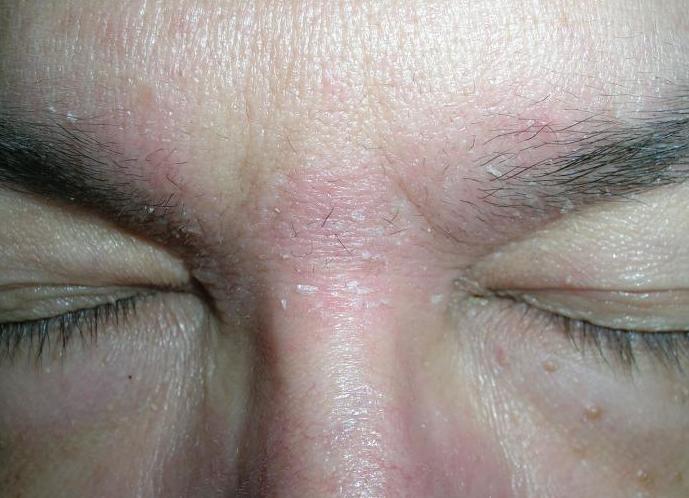 червоні плями на лобі у дорослого сверблять
