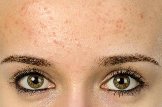 червоні плями на лобі у дорослого фото